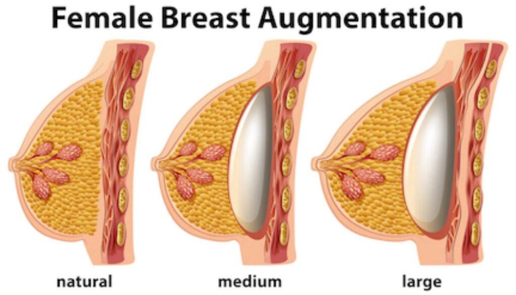 Bröstförstoring